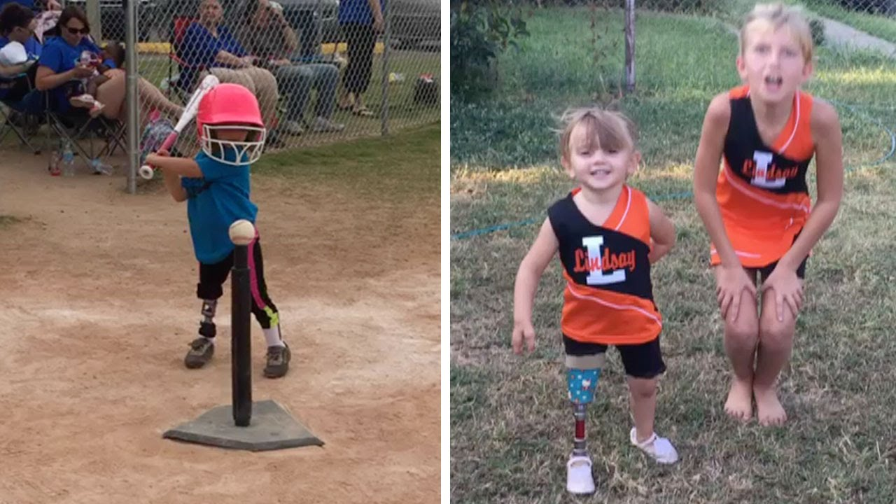 3 Year Old Amputee Defies Odds Whilst Playing Sports 1