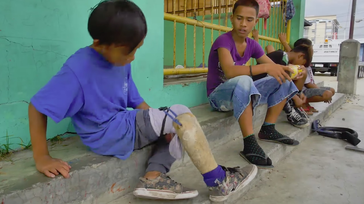 One Legged Boy Skates Again After Getting Prosthetic Leg 1